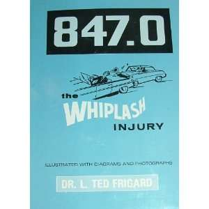 847.0 THE WHIPLASH INJURY (illustrated with diagrams and